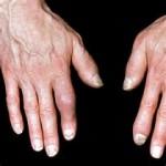 آرتروز انگشتان