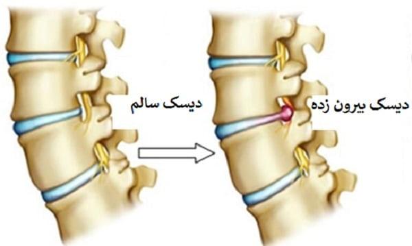 بیرونزدگی دیسک کمر باعث ایجاد درد در کدام نقاط بدن میشود و بهترین روش برای درمان این عارضه چیست؟