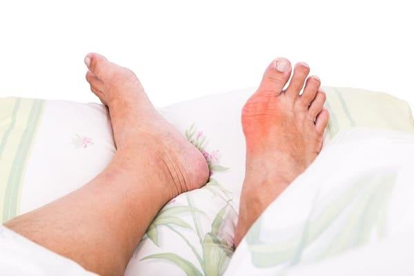 بیماری نقرس بعلت افزایش اسید اوریک در خون