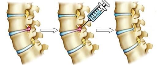 درمان غیر جراحی برای بیرونزدگی دیسک کمر
