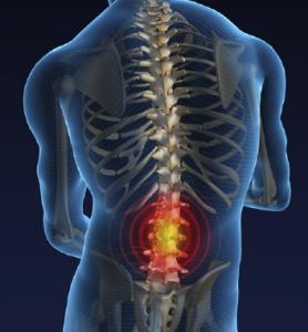 درمان کمر درد 3