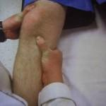 در-رفتگی-مفصل-زانو2