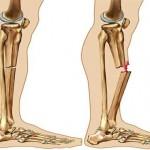 شکستگی-استخوان-2