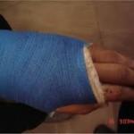 شکستگی شست دست
