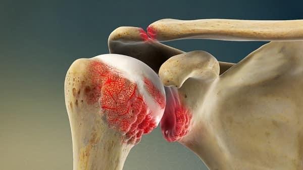 پنج نوع آرتروز مفصل شانه