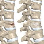 پوکی-استخوان+شکستگی-مهره-های-کمر