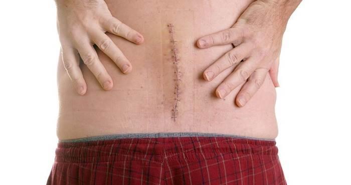 کمر درد بعد از جراحی باز کمر