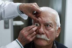 پروتز چشم