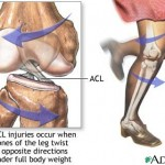 ACL_Injury
