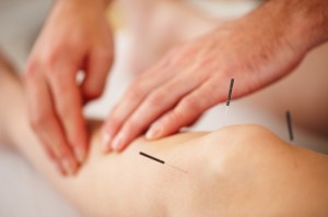 Acupuncture+Joint+Pain