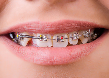 Orthodontic-Emergencies-Braces-Dental-Metal-350x250