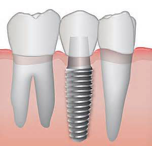 Space-ideal-for-implants