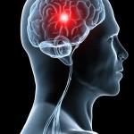 Stroke-سکته-مغزی-5