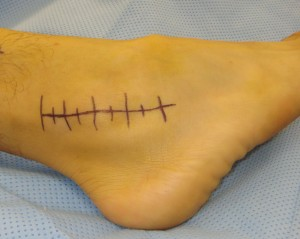 ankle-ligament-surgery-repair-reconstruction-bracing