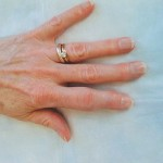 arthritis-on-fingers-pictures-i2