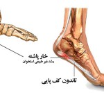 heel_spur_diagram-elmevarzesh