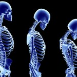 princ_rm_photo_of_stages_of_osteoporosis
