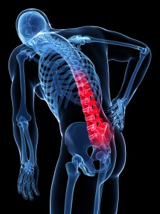 skeleton-back-pain